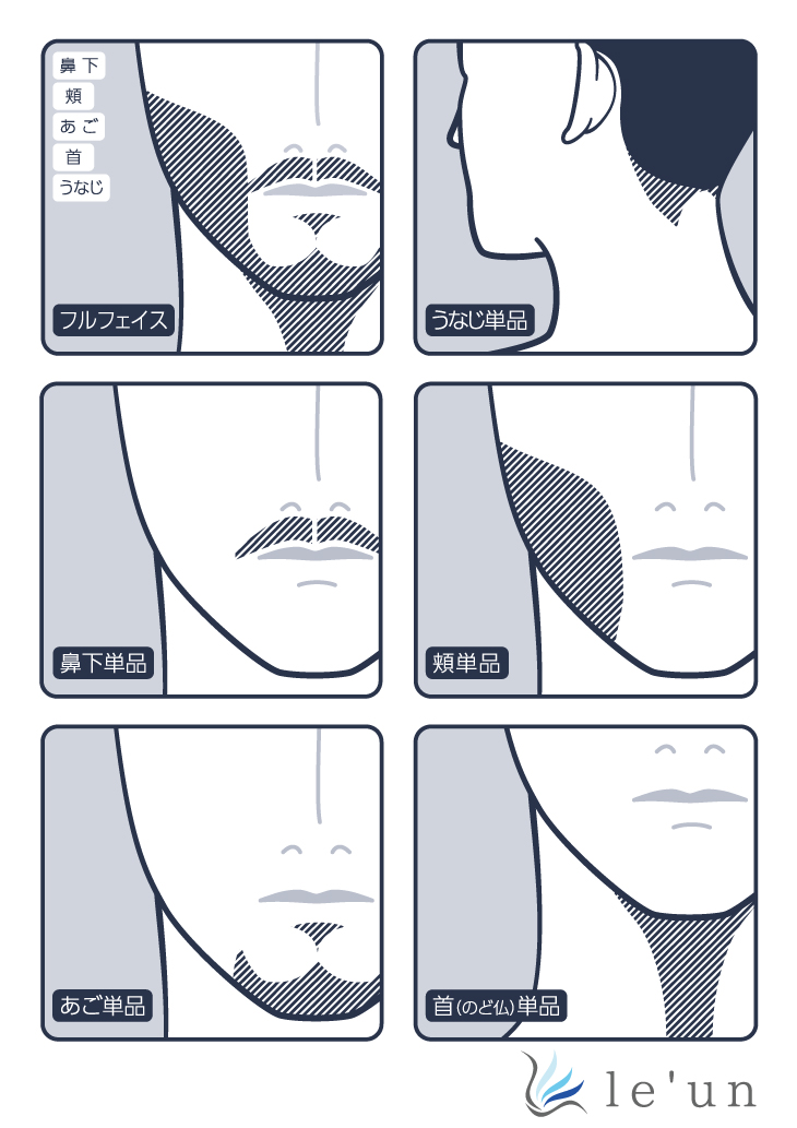 フラッシュ髭脱毛